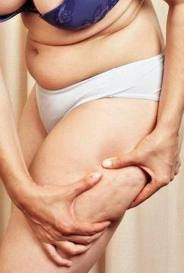 Aesthetica Cellulite Treatment
