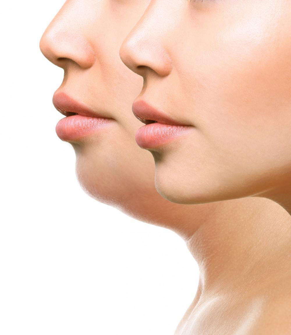Aesthetica Double chin treatment