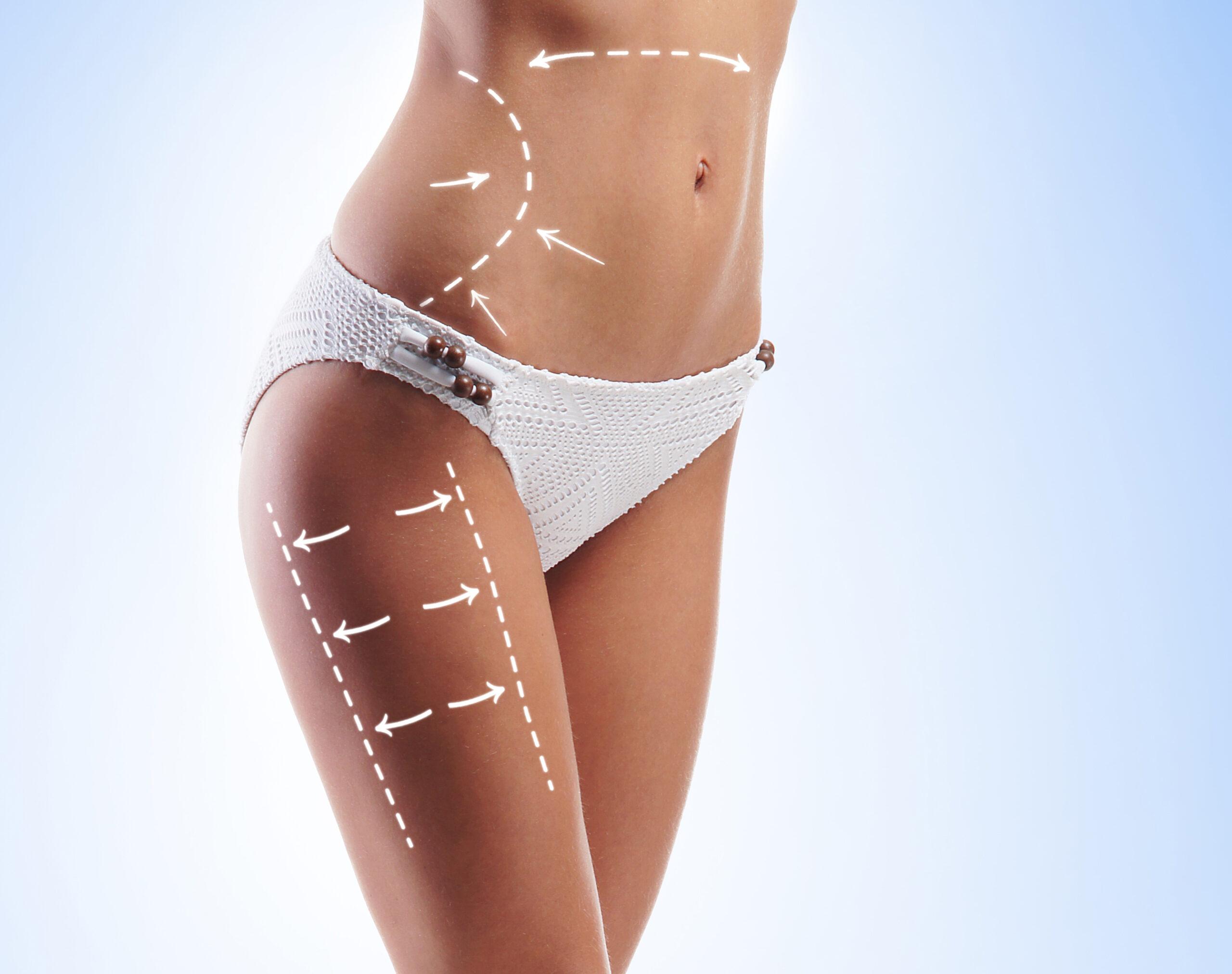 Aesthetica Liposuction