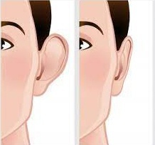 otoplasty or cosmetic ear pinning at Aesthetica