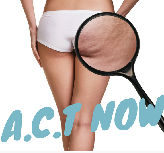 ACT NOW, Cellulite treatments