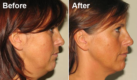 Aesthetica Accent rf for double chin